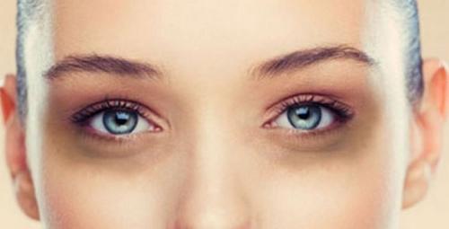 Как убрать синяки под глазами навсегда. Надоели синяки под глазами? Уберите их быстро и навсегда